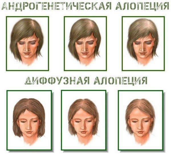 Различные типы алопеции