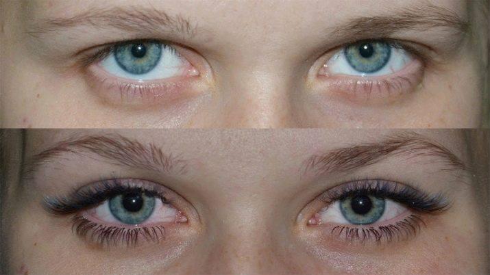 narashhivanie-resnic-vidy-i-effekty